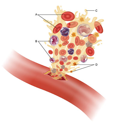 This figure shows an artery with a small puncture at its center. Blood is gushing out of the puncture, carrying with it the four major blood components, which are labeled A through D. Component A indicates the red, disk-shaped cells with a depression at their center. Component B indicates the white-colored cells with purple, bean-shaped nuclei. Component C is the yellowish liquid component of the blood. Component D indicates small, yellow, star-shaped bodies within the fluid.